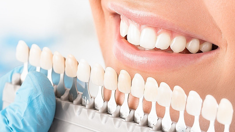 A Complete Guide To Teeth Whitening And How It Works